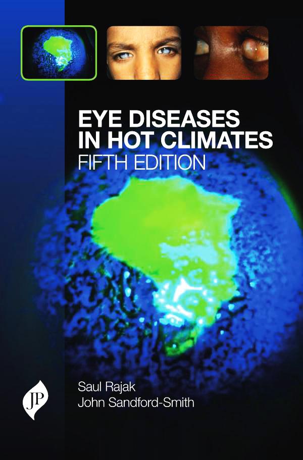 Maladies oculaires sous les climats chauds